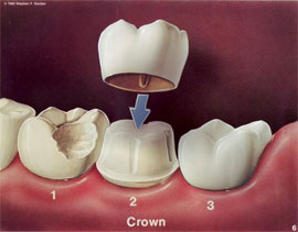 Crown Amp Bridge Services General Dentistry In Buffalo