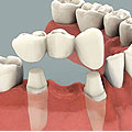 Dental Implants Buffalo, NY