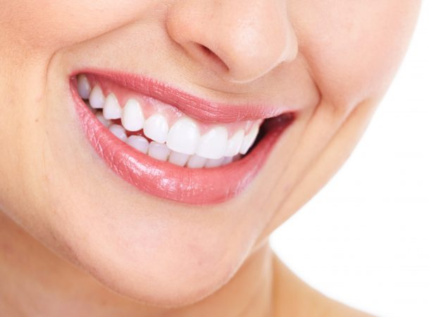 dental veneers overview