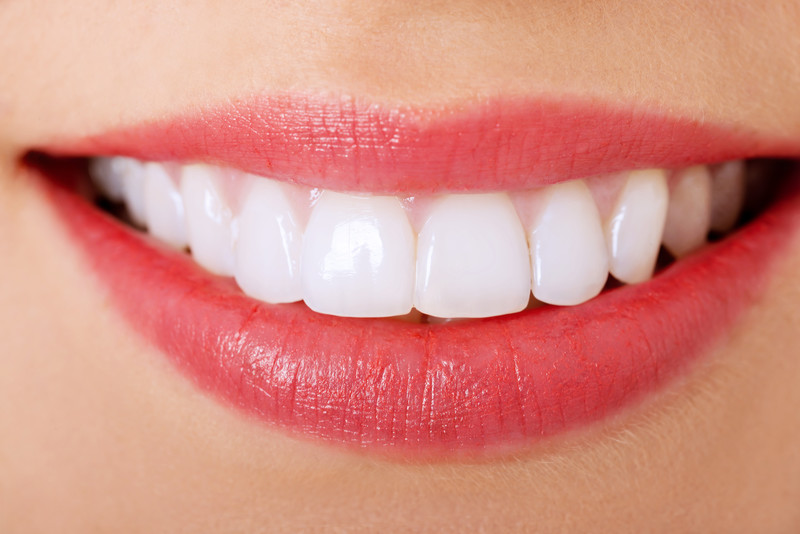 candidate for tooth whitening