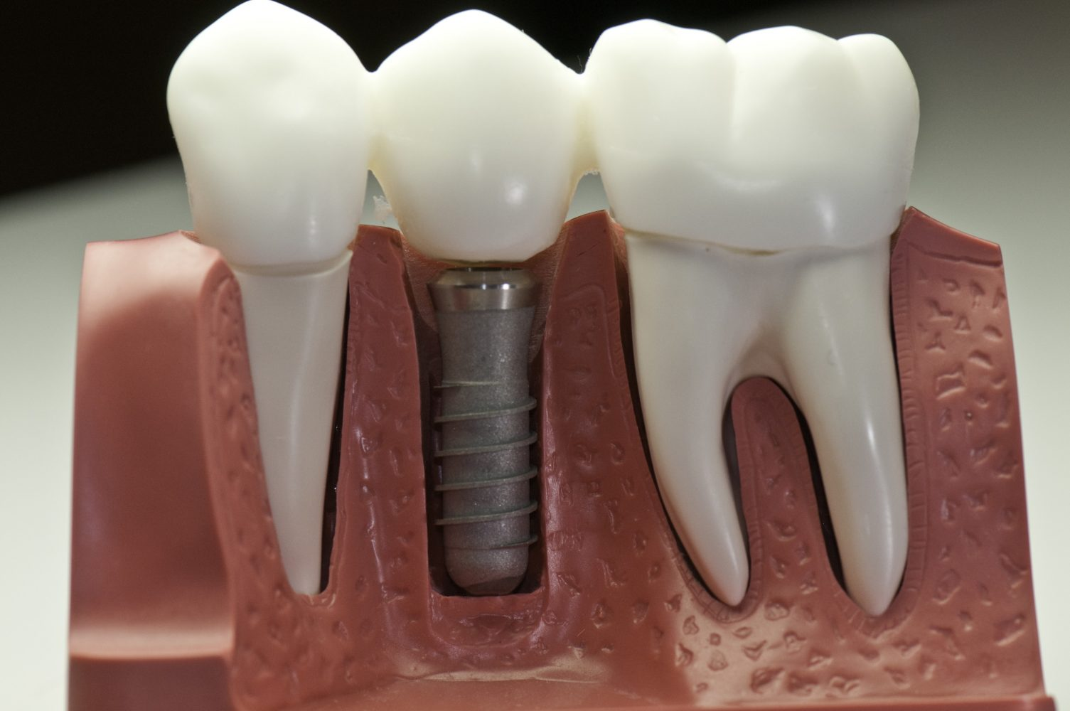 dental implants aftercare